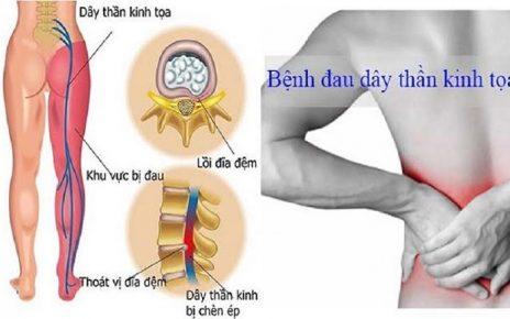 Nguyên nhân gây ra đau dây thần kinh tọa và cách phòng tránh